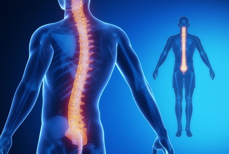 Sleeping Comfortably With Scoliosis